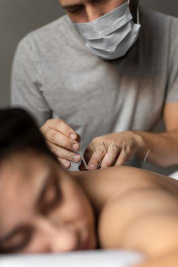 A patient receiving acupuncture treatment